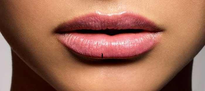изображение сухих губ