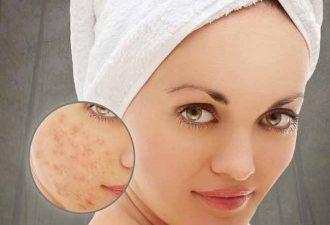 Маски для проблемной кожи с аспирином