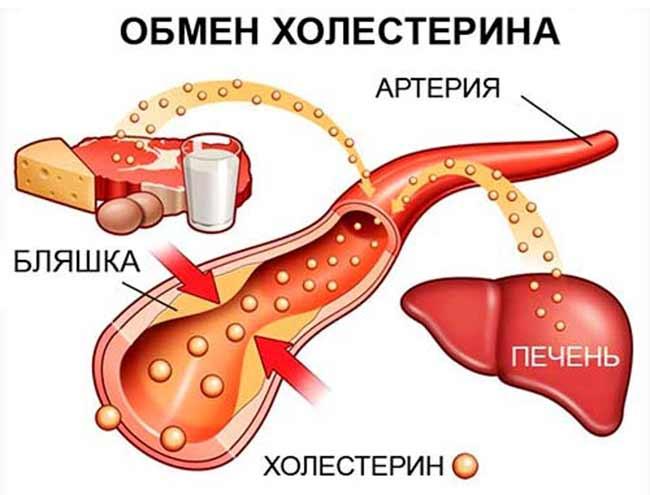 Опасный холестерин: норма и как снизить холестерин без лекарств