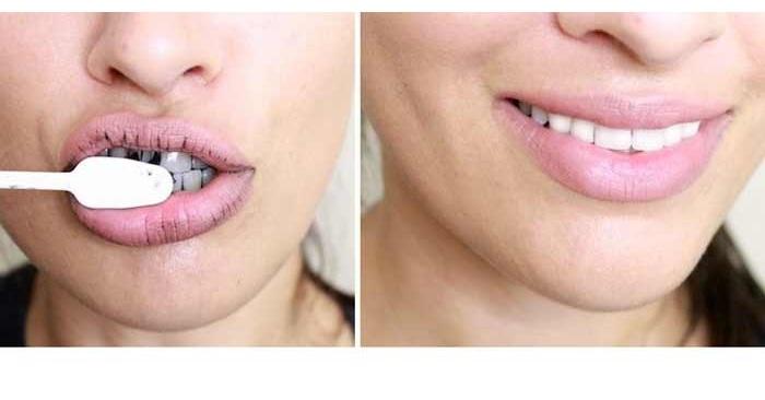 Отбеливание зубов на 2 тона