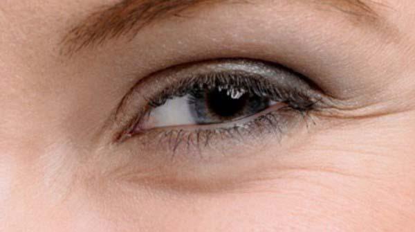 Динамические морщины под глазами