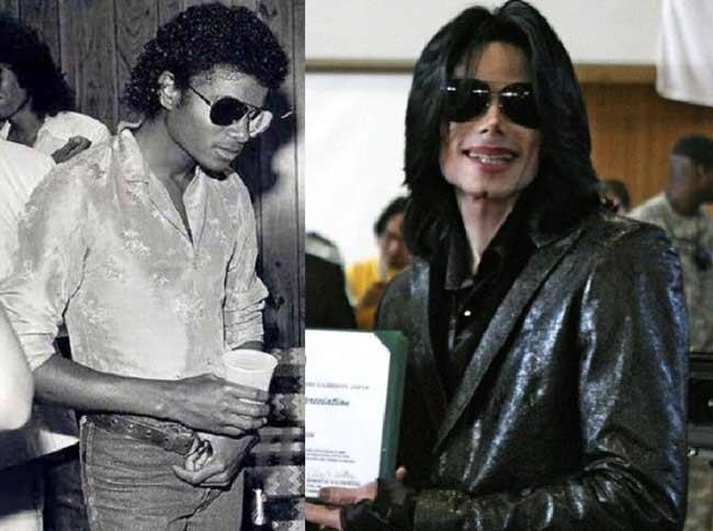 Майкл Джексон до и после пластики