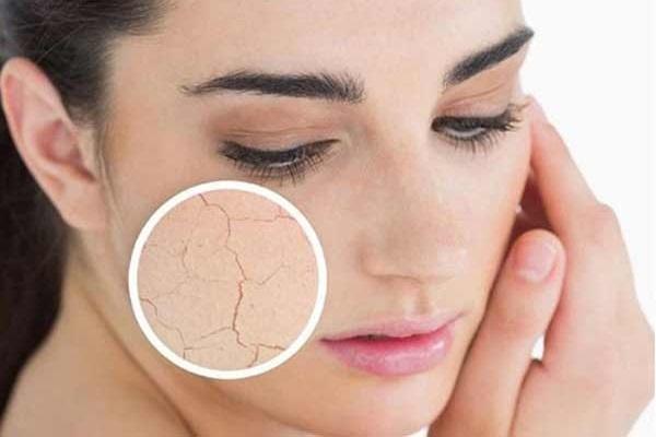 SOS-уход: домашние рецепты масок для сухой и увядающей кожи