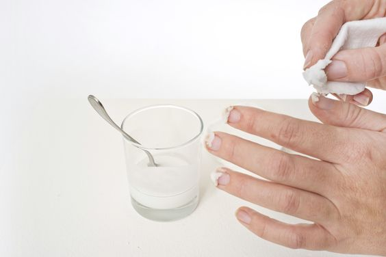 Пожелтевшие ногти что делать