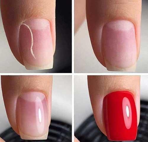 Проблемы наращивания ногтей гелем