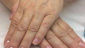 Проверено: ванночки убирают пигментные пятна и сухость кожи рук